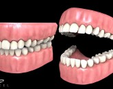 Gum and teeth model