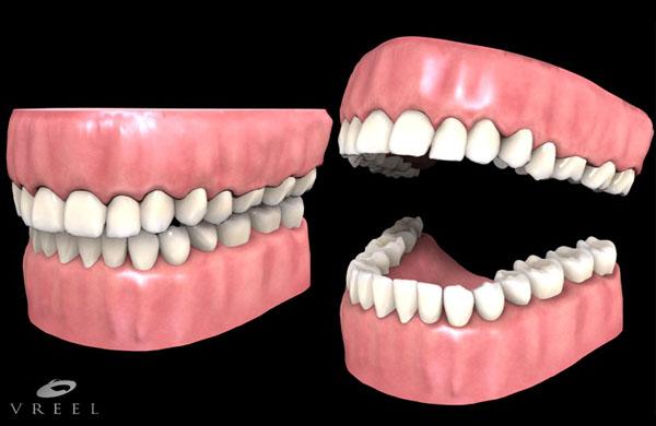 Gum and teeth model